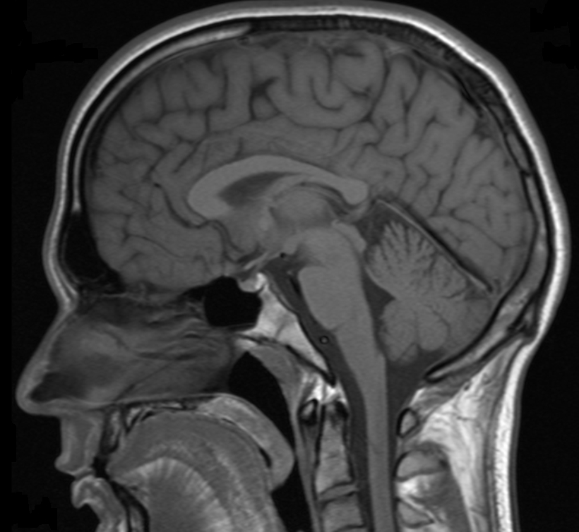 Brain scan concussion